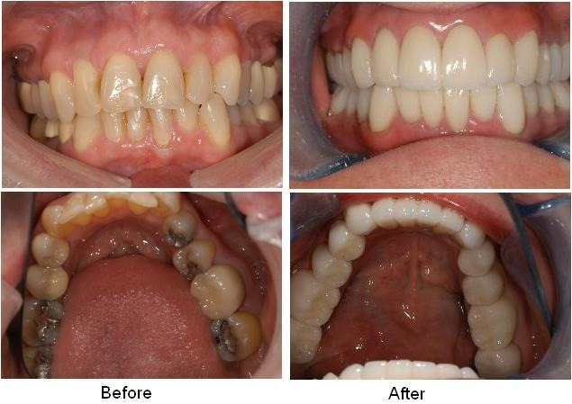 How Much Is A Crown >> Porcelain Crowns Bridges Griffith Dental Surgery